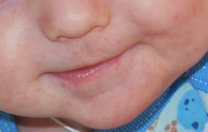 Раздражение на мочу у детей фото